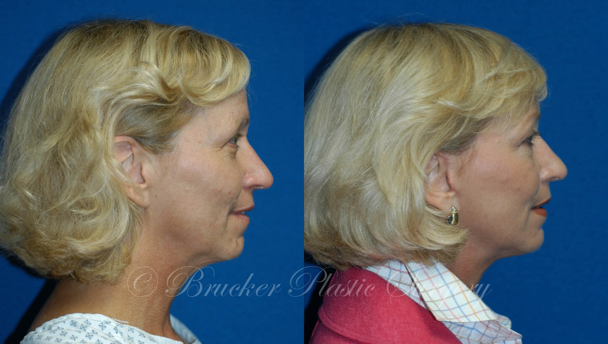 Facelift Del Mar Patient 1.2