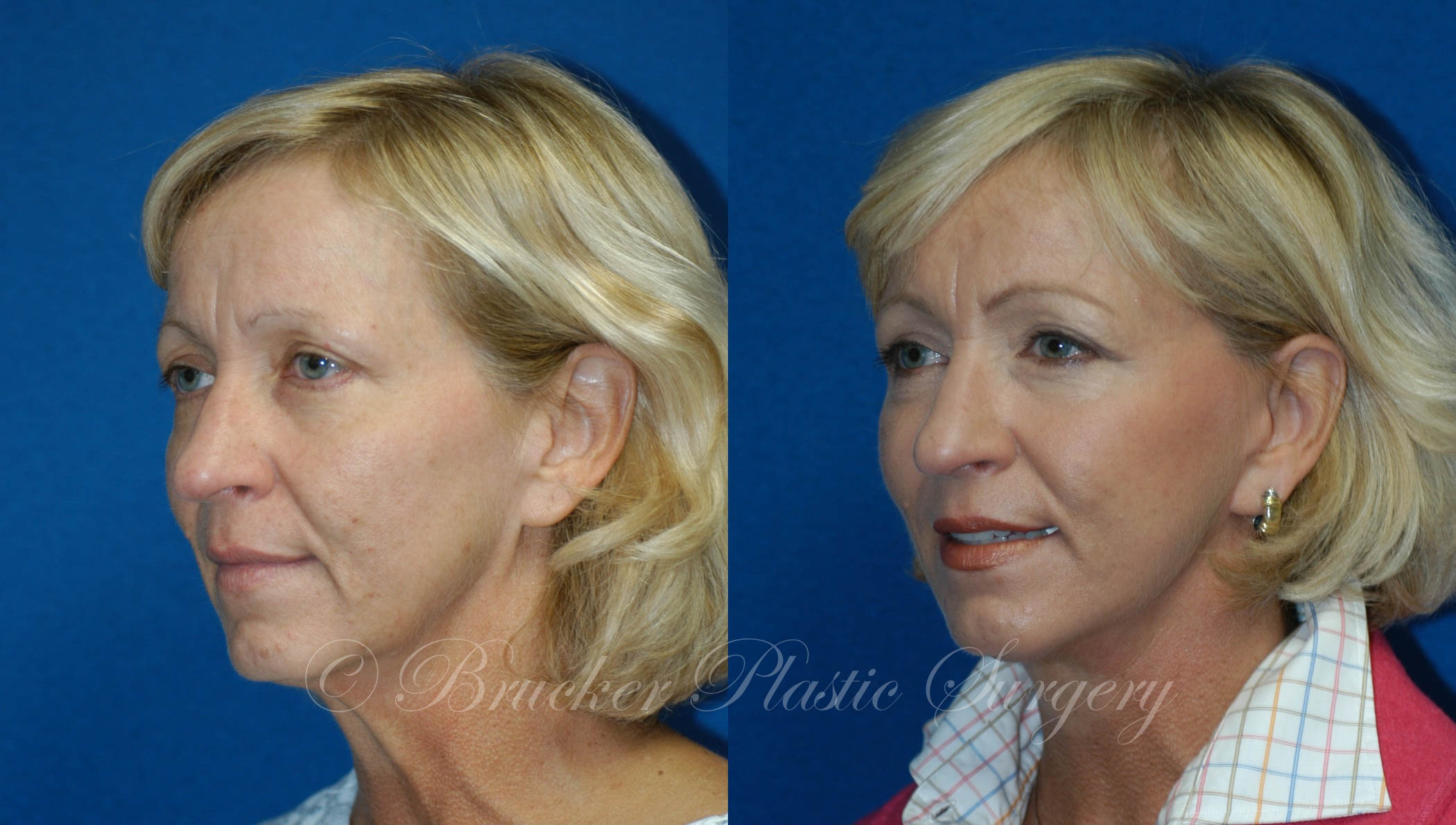 Facelift Del Mar Patient 1.3