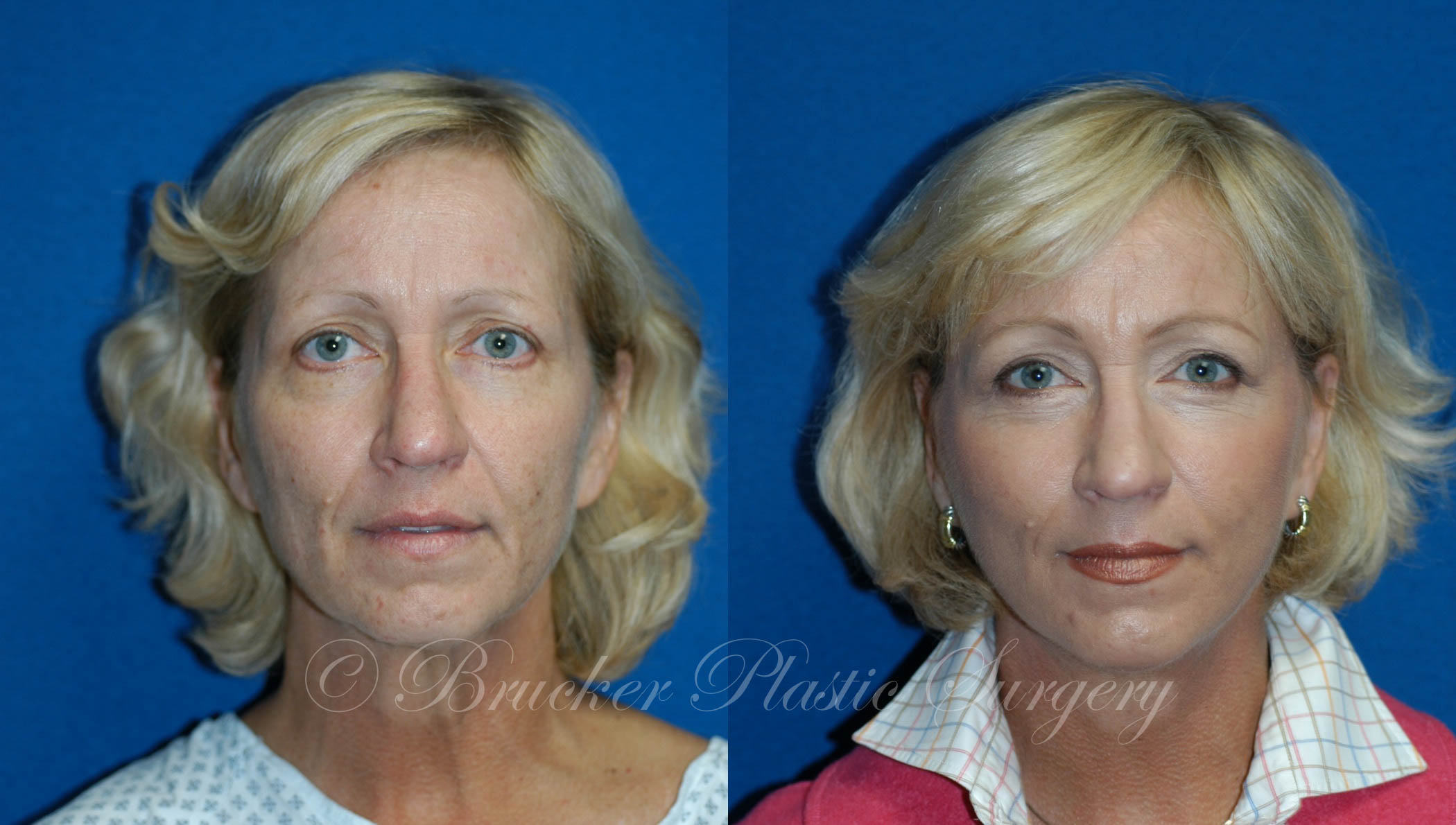 Facelift Del Mar Patient 1