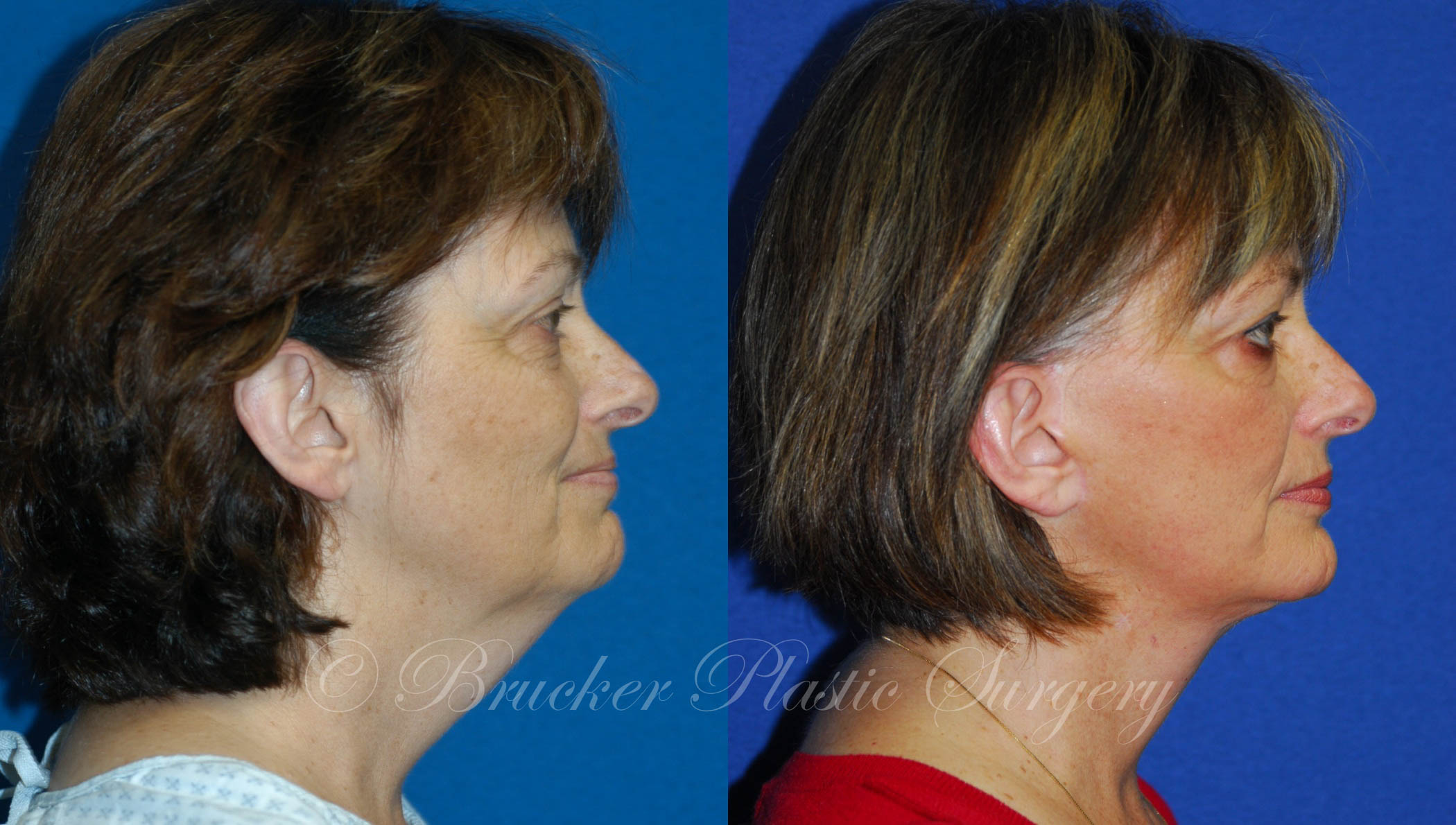 Facelift La Jolla Patient 1.1