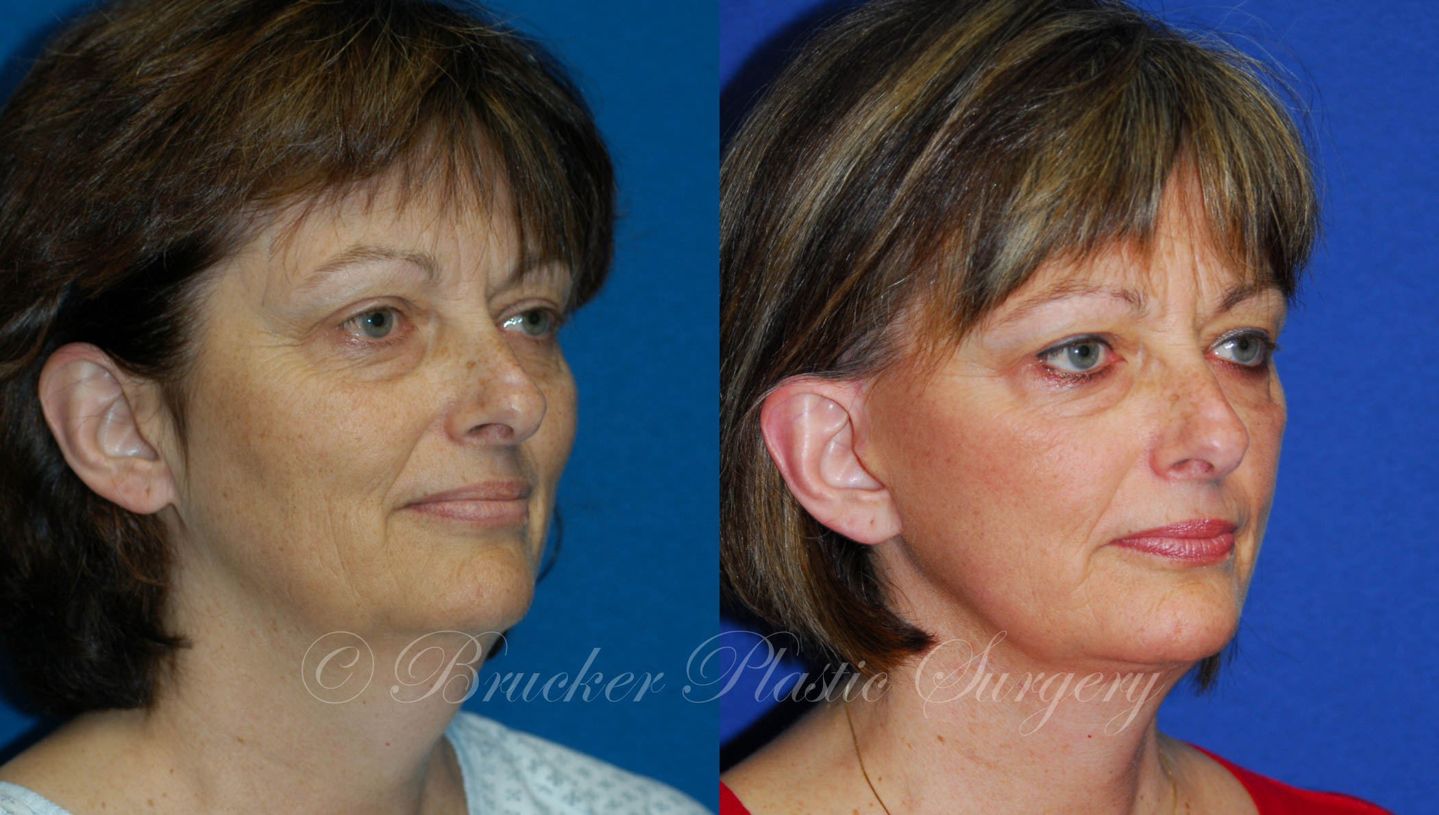Facelift La Jolla Patient 1.2