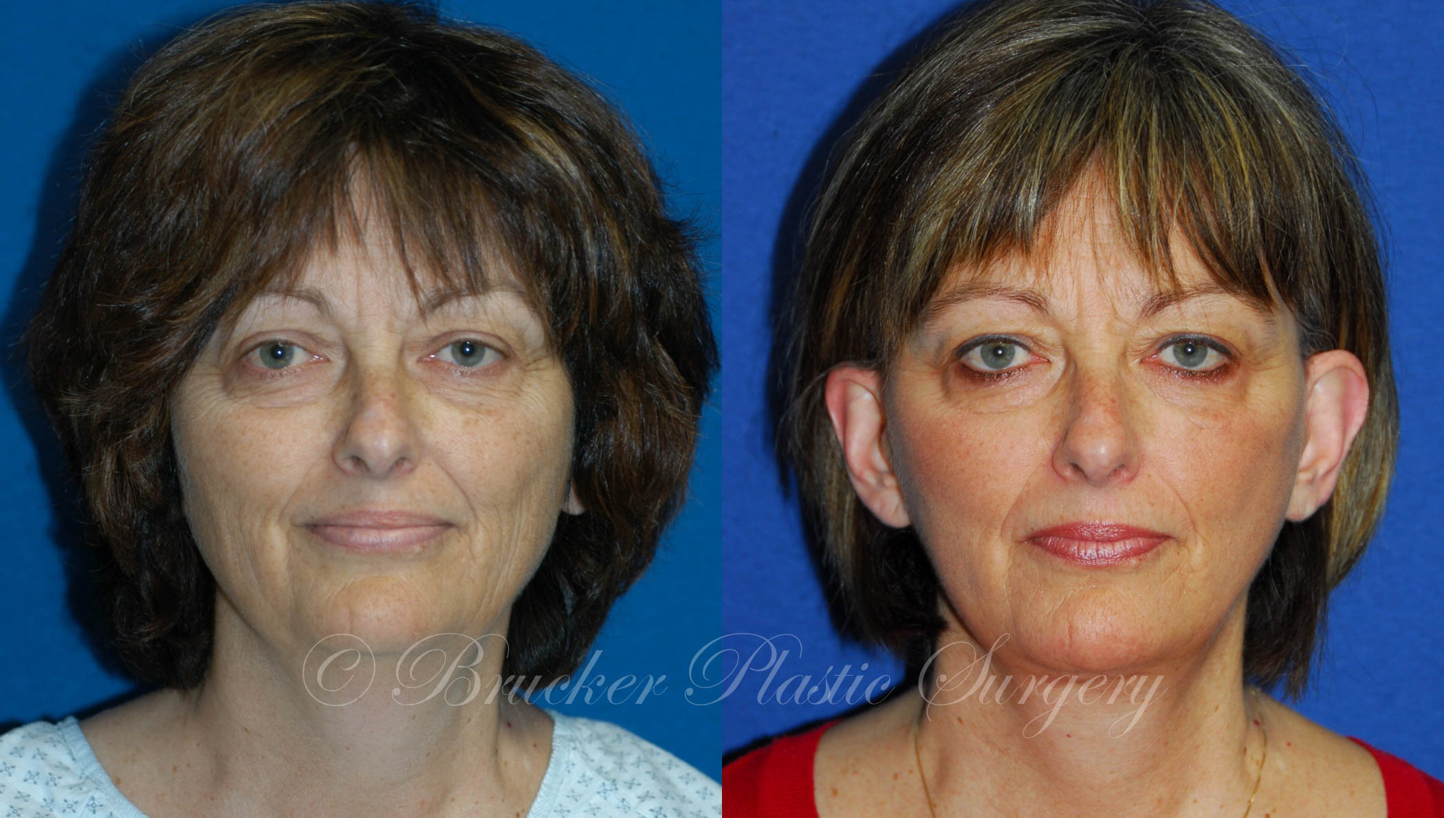 Facelift La Jolla Patient 1