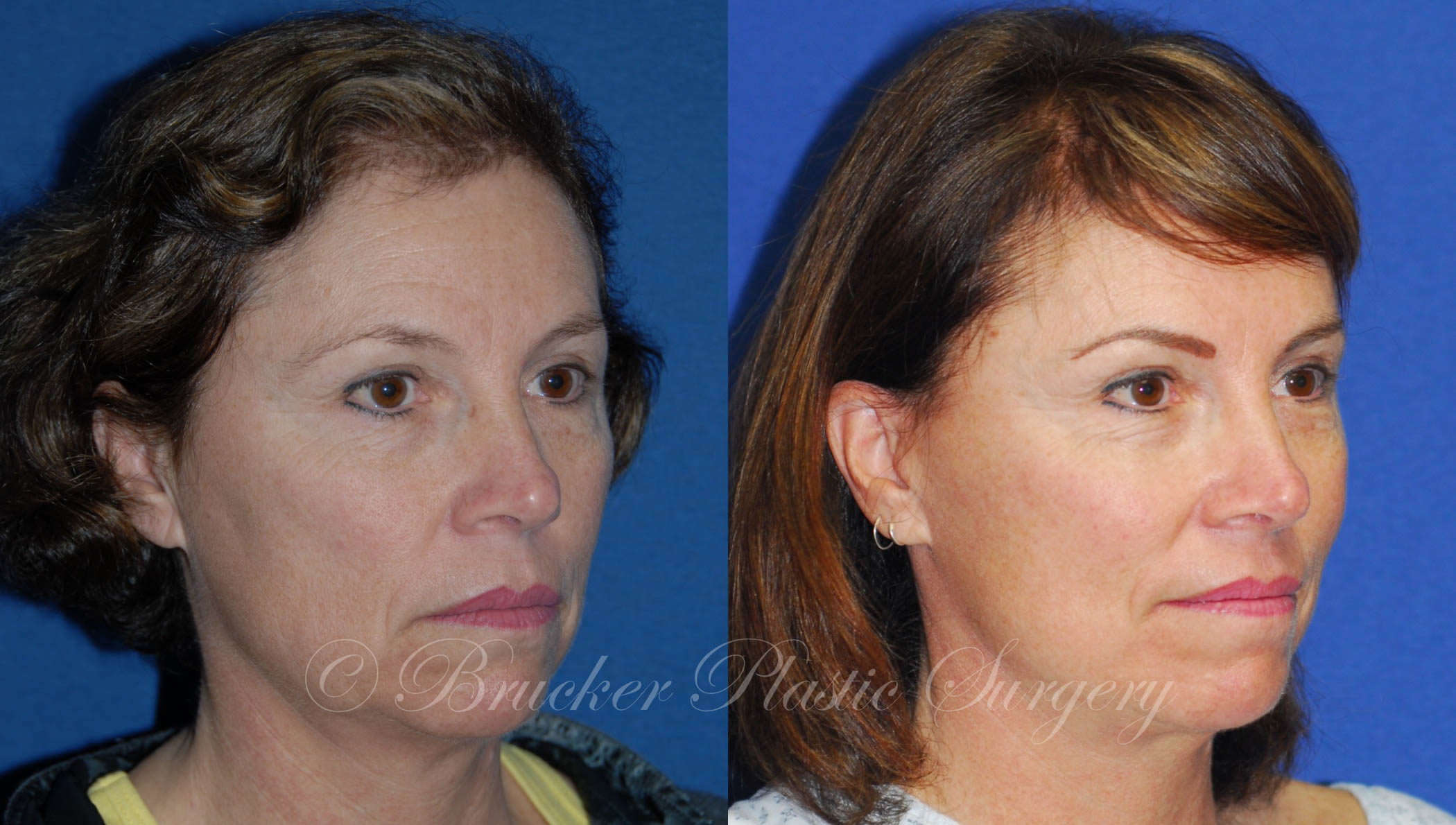 Facelift La Jolla Patient 2.1