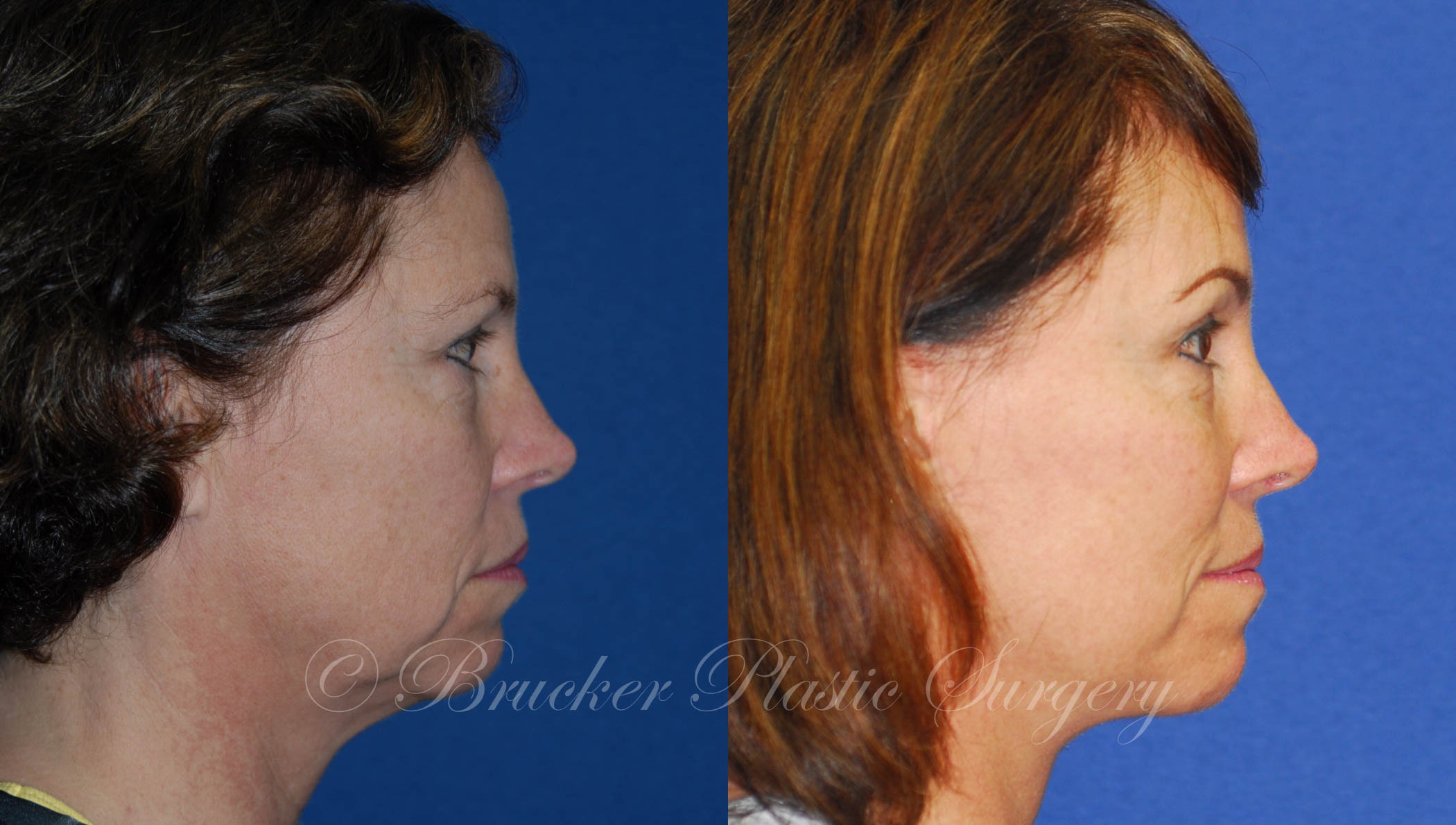 Facelift La Jolla Patient 2.2