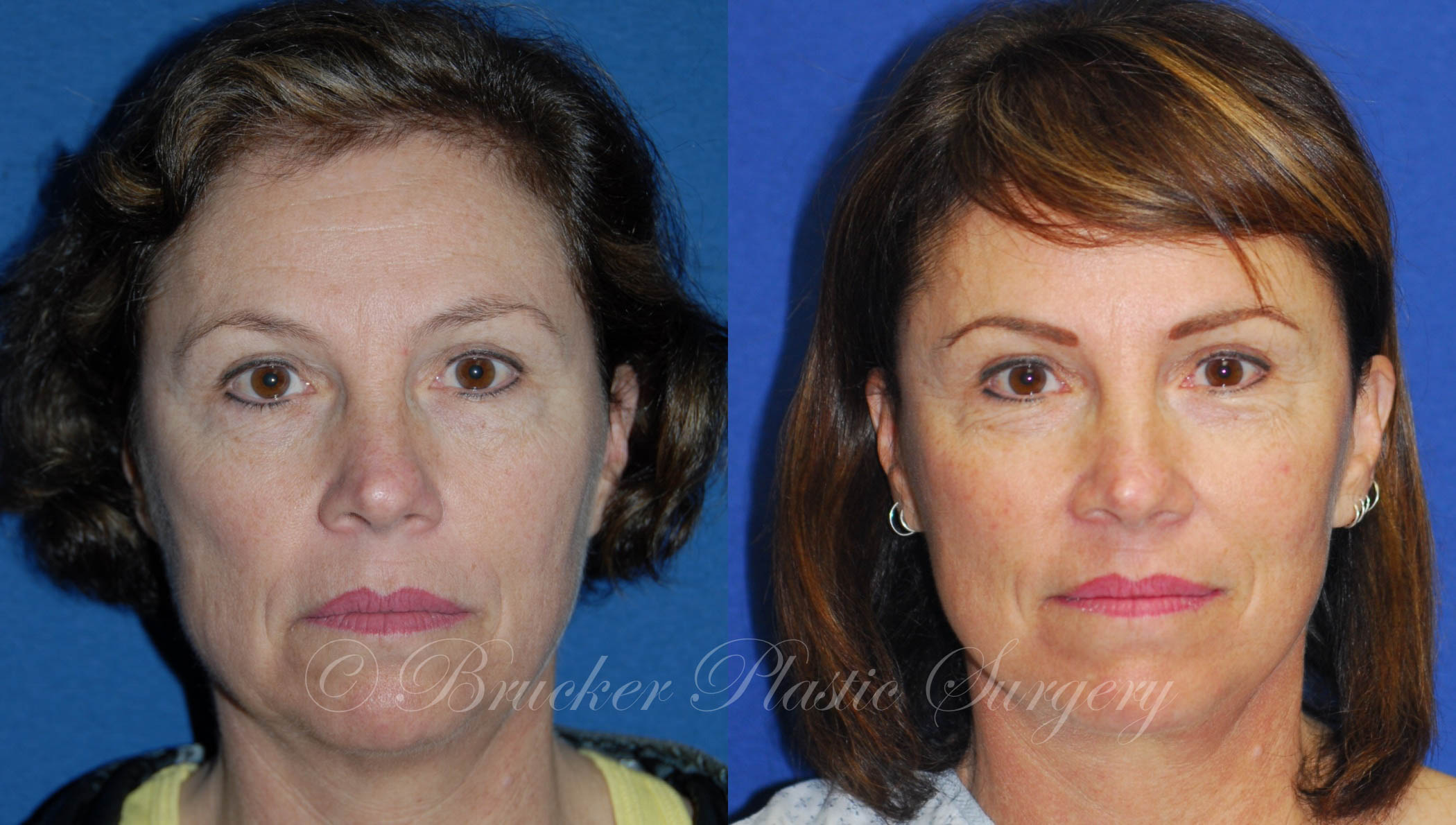Facelift La Jolla Patient 2