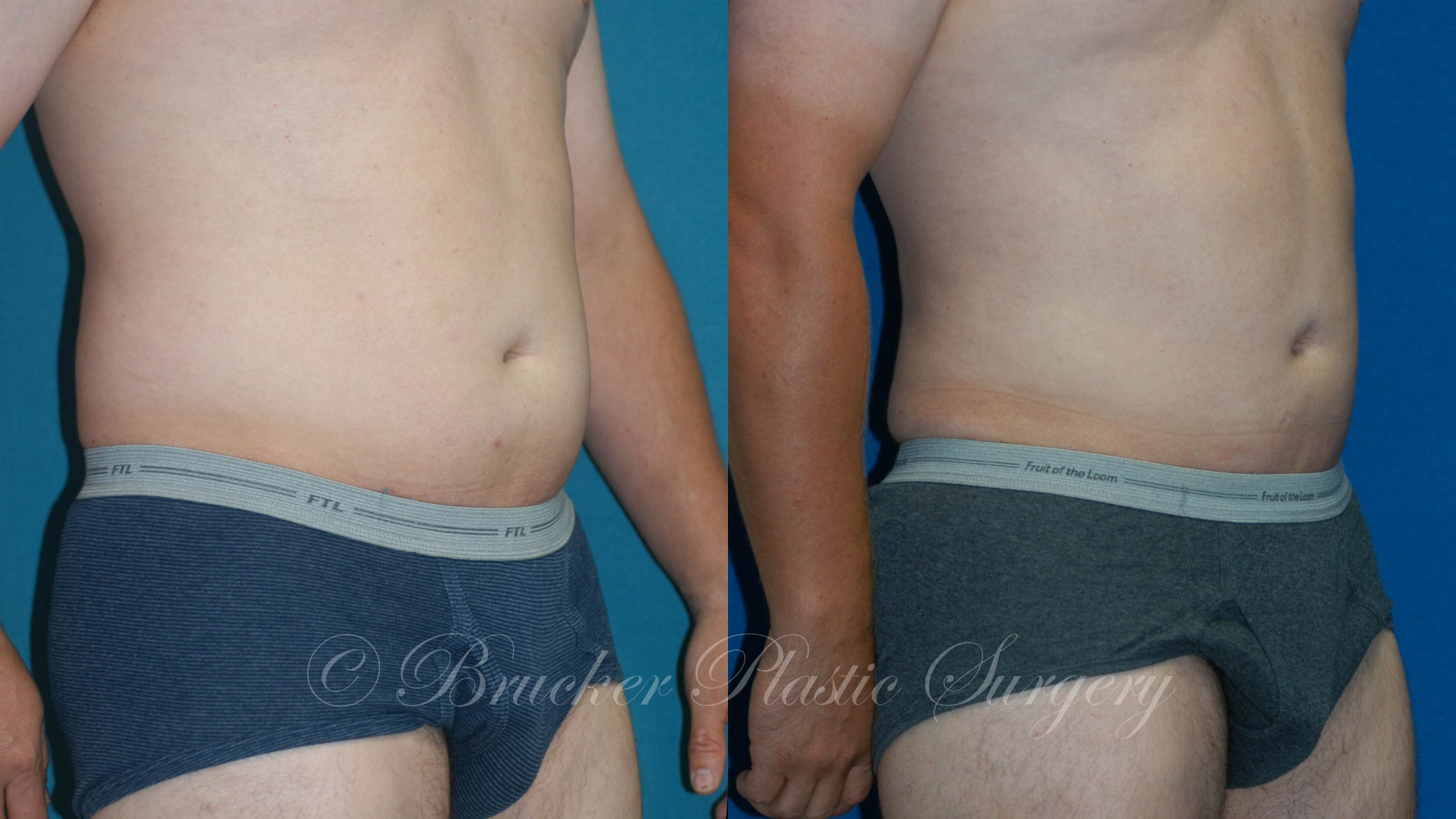 Liposuction La Jolla Patient 1.1