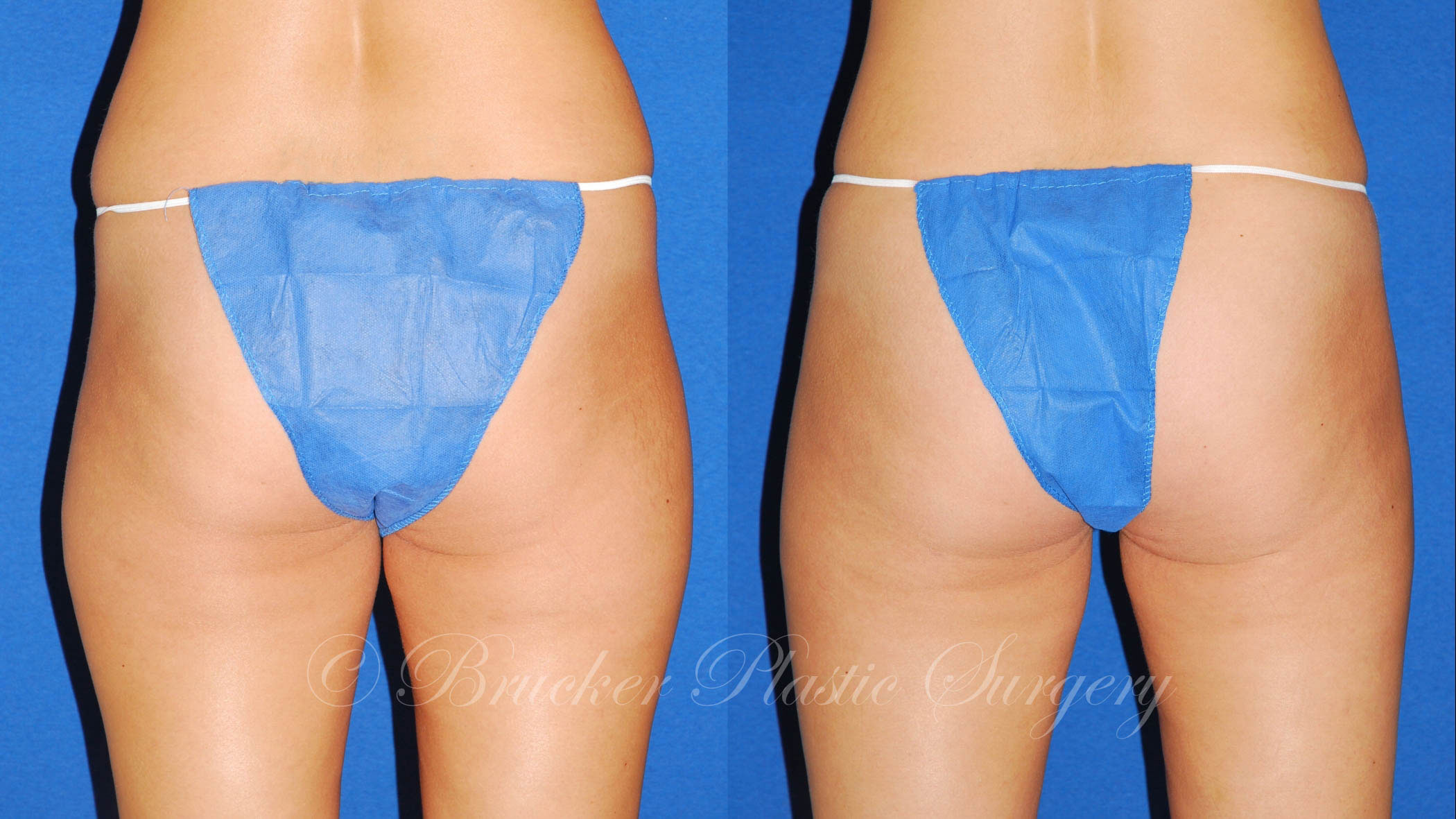 Liposuction La Jolla Patient 2.2