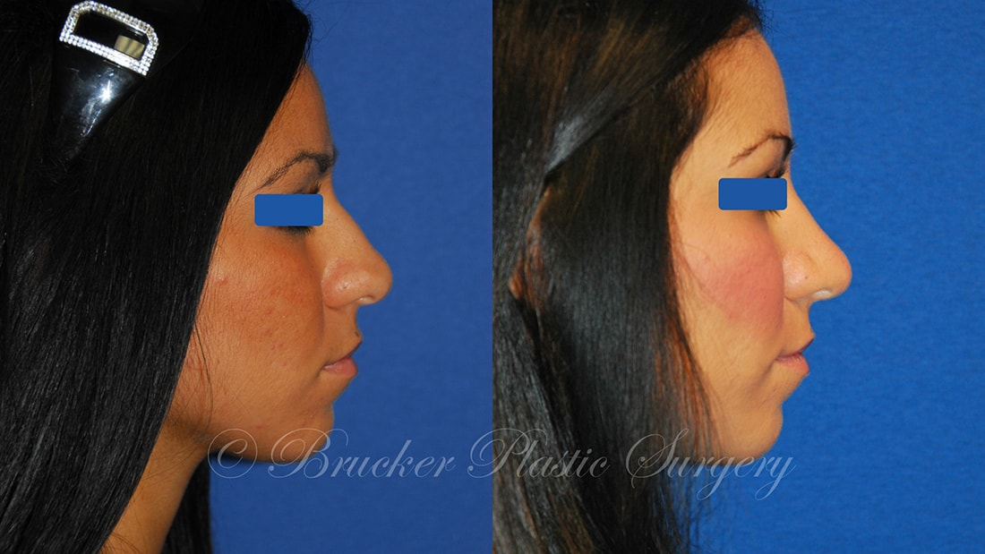 Patient 3d Rhinoplasty Before and After