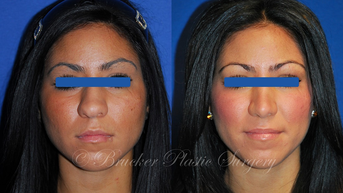 Patient 3a Rhinoplasty Before and After