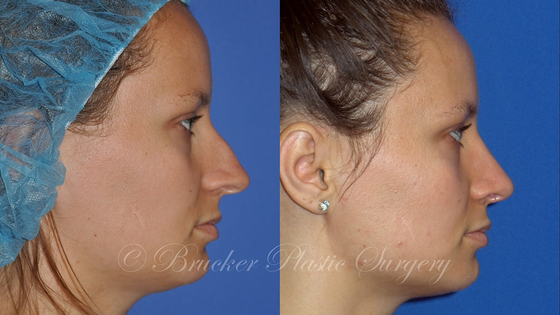 Patient 2b Rhinoplasty Before and After