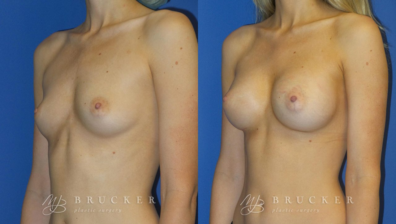 Patient 7b Breast Augmentation Before and After