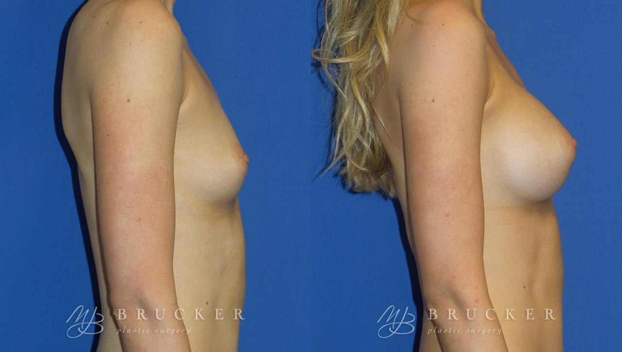 Patient 7c Breast Augmentation Before and After