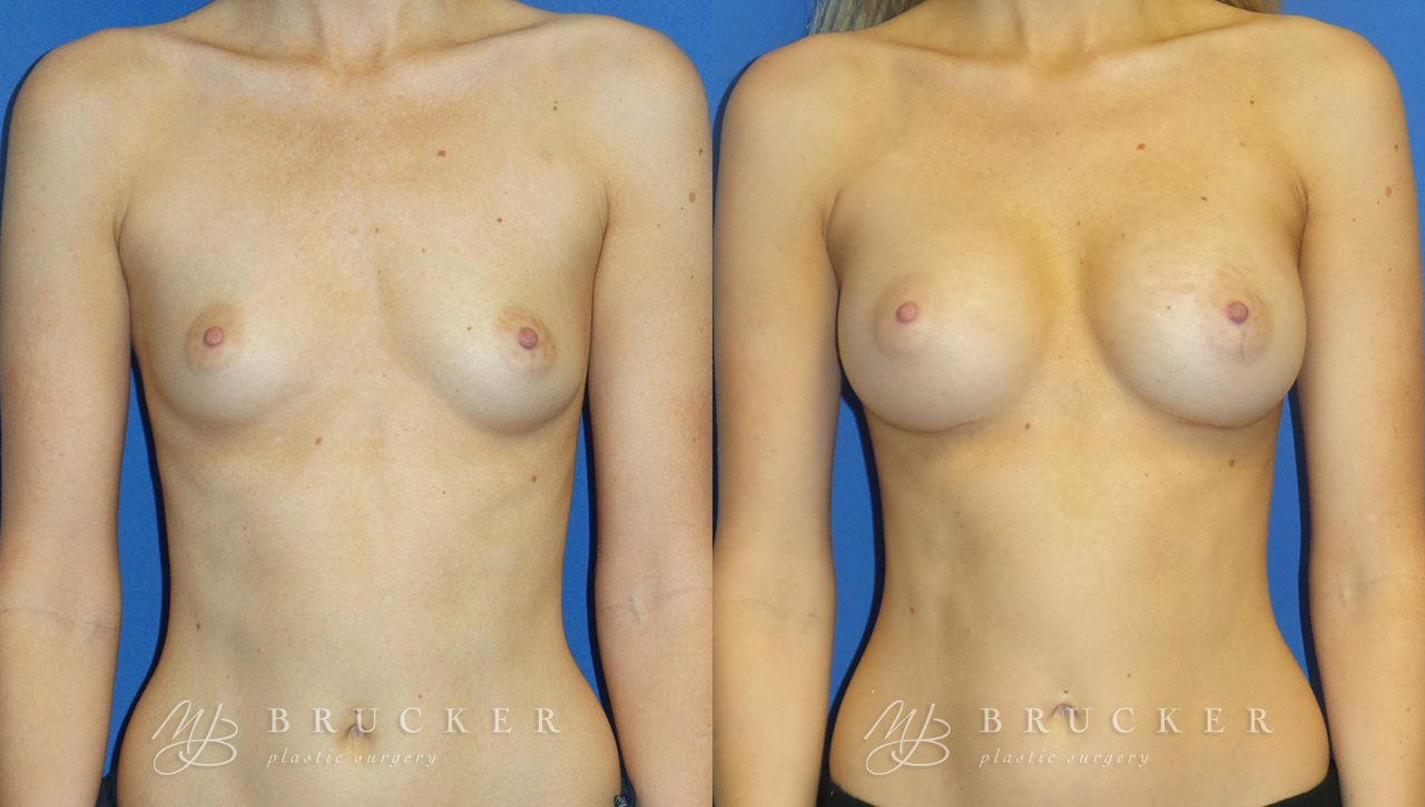 Patient 7d Breast Augmentation Before and After