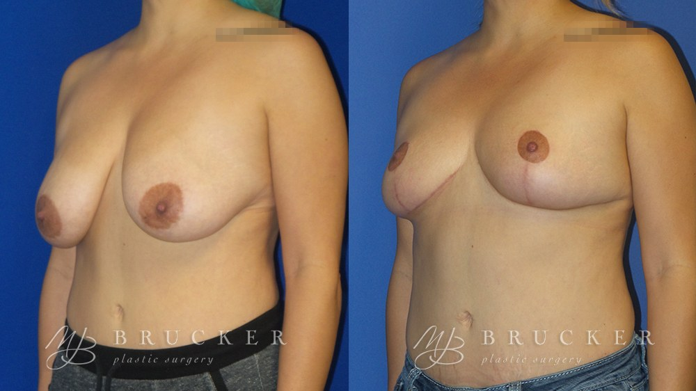 Patient 4b Breast Reduction Before and After