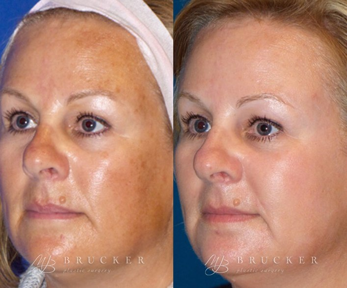 Patient 1b Halo™ By Sciton Before and After