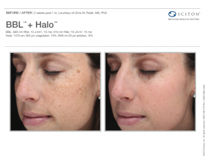 BBL™ + Halo™ Before and After Sciton® Ad