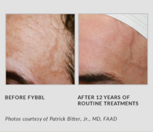 FYBBL Before and After 12 Years of Treatment
