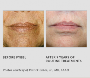 FYBBL Before and After 9 Years of Treatment