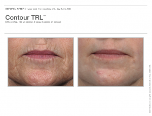 Contour TRL™ Before and After Ad 2