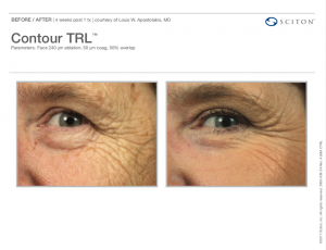 Contour TRL™ Before and After Ad