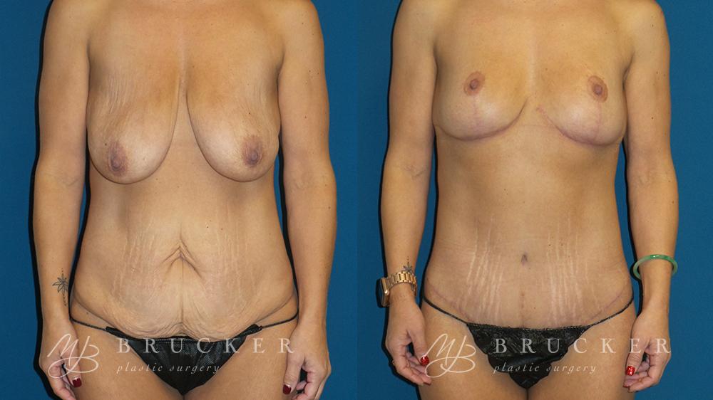 DrBrucker_LaJolla_Breast_Lift_B&A_Patient2_Front