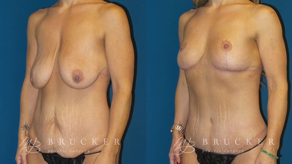 DrBrucker_LaJolla_Breast_Lift_B&A_Patient2_Oblique Left