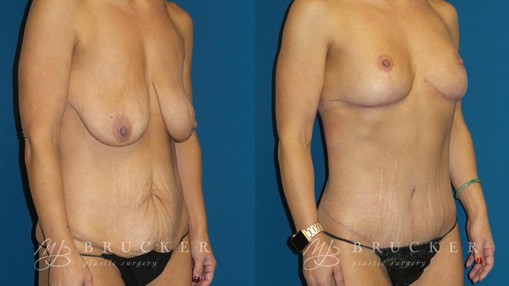 DrBrucker_LaJolla_Breast_Lift_B&A_Patient2_Oblique Right