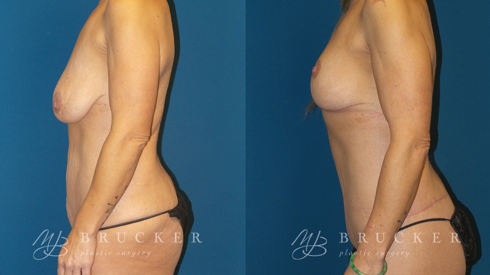 DrBrucker_LaJolla_Breast_Lift_B&A_Patient2_Side(Left)