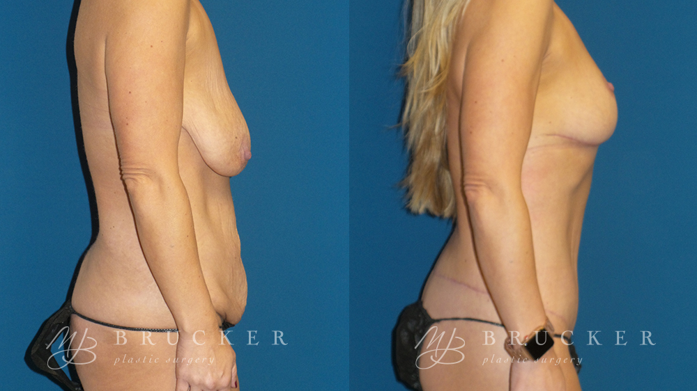 DrBrucker_LaJolla_Breast_Lift_B&A_Patient2_Side(Right)