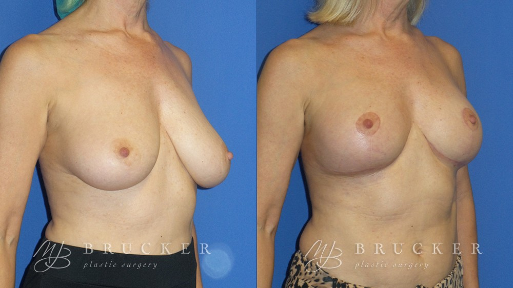 before and after of breast lift patient