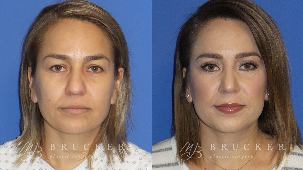 Blepharoplasty Before and After Photo - Patient 1 Front View