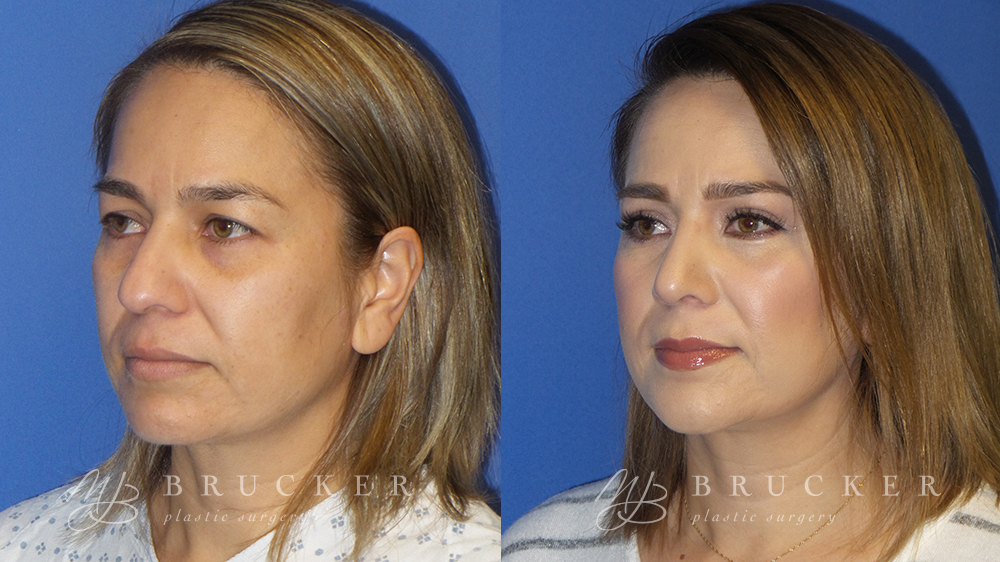 Blepharoplasty Before and After Photo - Patient 1 Oblique View