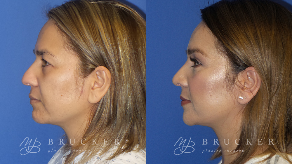 Blepharoplasty Before and After Photo - Patient 1 Side View